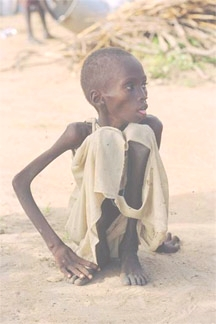 STARVING                     TO DEATH DAILY, 27,000 CHILDREN