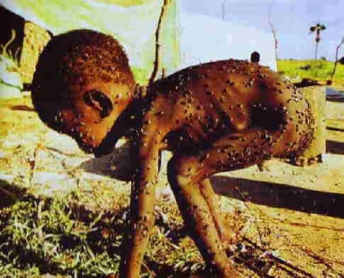 STARVING TODDLER in AFRICA, covered with FLIES. AMERICA, how long do you let EUROPE EXPLOIT THE DARK CONTINENT?