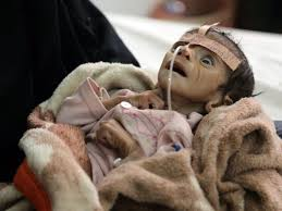 starving baby in yemen, torn by civil                         war, saudis are bombing it daily with our jets,                         bombs. WE SUPPLY SAUDI ARRABIA so they can kick                         the #$*&% out of this tiny, impoverished                         country. GO FIGURE!